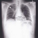 Chest x-ray showing early signs of pneumonia in a SARS patient 4 days after onset of symptoms. Arrows point to whitish areas indicating pneumonia.