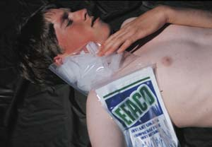 Ice packs or cold packs can be placed along the side of the neck, armpits, and groin areas, where large blood vessels are relatively close to the skin, to rapidly cool the blood in an individual with heat exhaustion or heat stroke. Do not put ice packs directly on the skin for long periods of time. Wrap them in a light towel or cloth.
