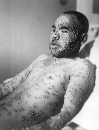 An Iranian citizen with smallpox in 1962